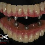 ART DENTAL AESTHETICS ADA/Hybrid ALL ON 4 with titanium custom abutment