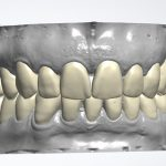 Smart Dental Lab/Digital Diagnostic Wax Up & κατασκευή 3D model για mock up