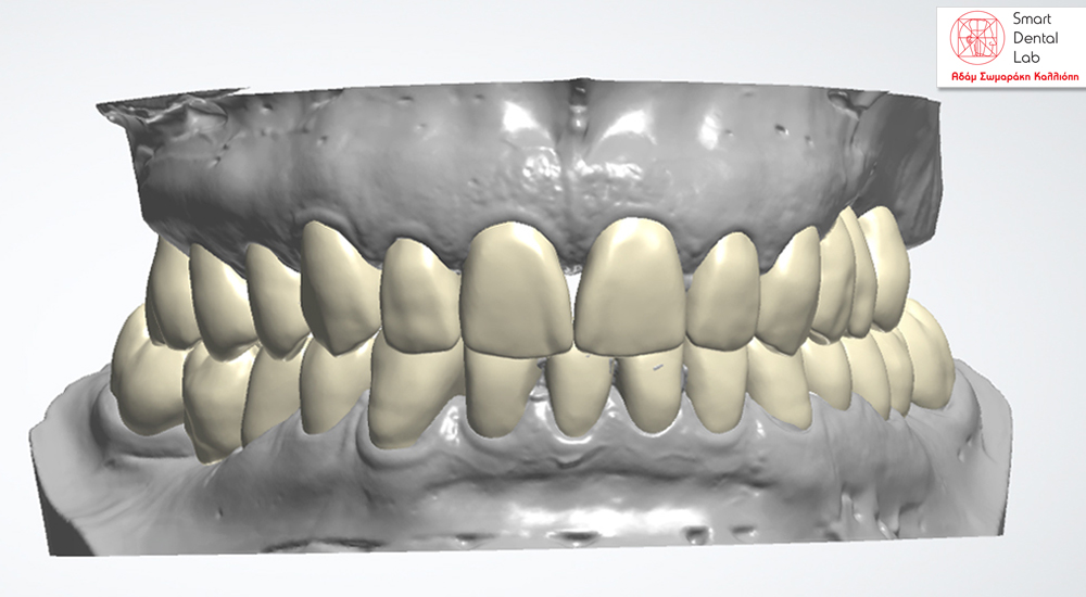 Smart Dental Lab/Digital Diagnostic Wax Up & κατασκευή 3D model για mock up