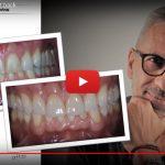 Dental Aesthetic/4 ceramic press veneers with cut-back