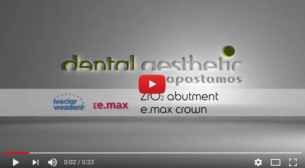 Dental Aesthetic/ZrO2 Abutment – E.max crown