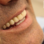 ARCHITOOTH/Full-Mouth Rehabilitation with full Arch Implant Prostheses