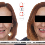 Full arch immediate loading optimised with Southern Implants & DSD