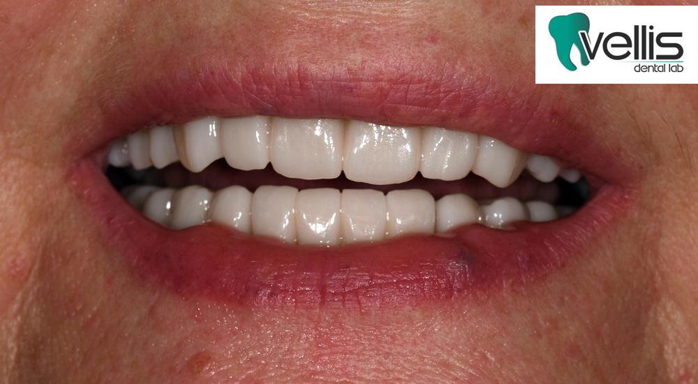 VELLIS DENTAL LAB / Ολική Αποκατάσταση Στόματος